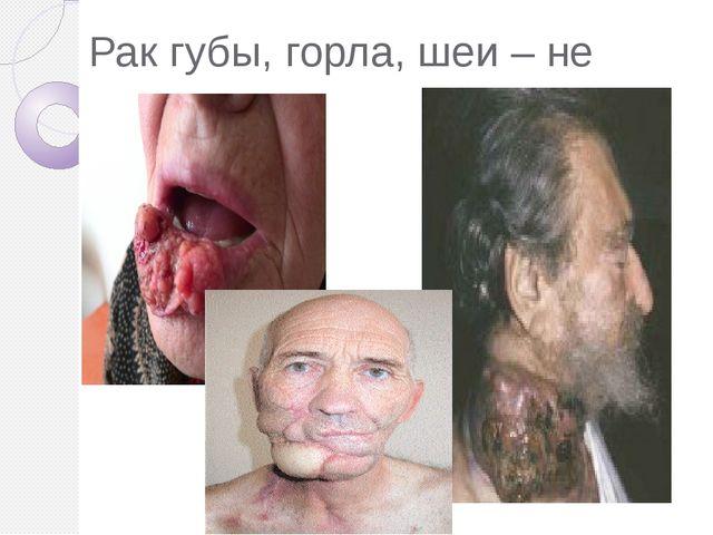 Рак губы, горла, шеи – не редкость.