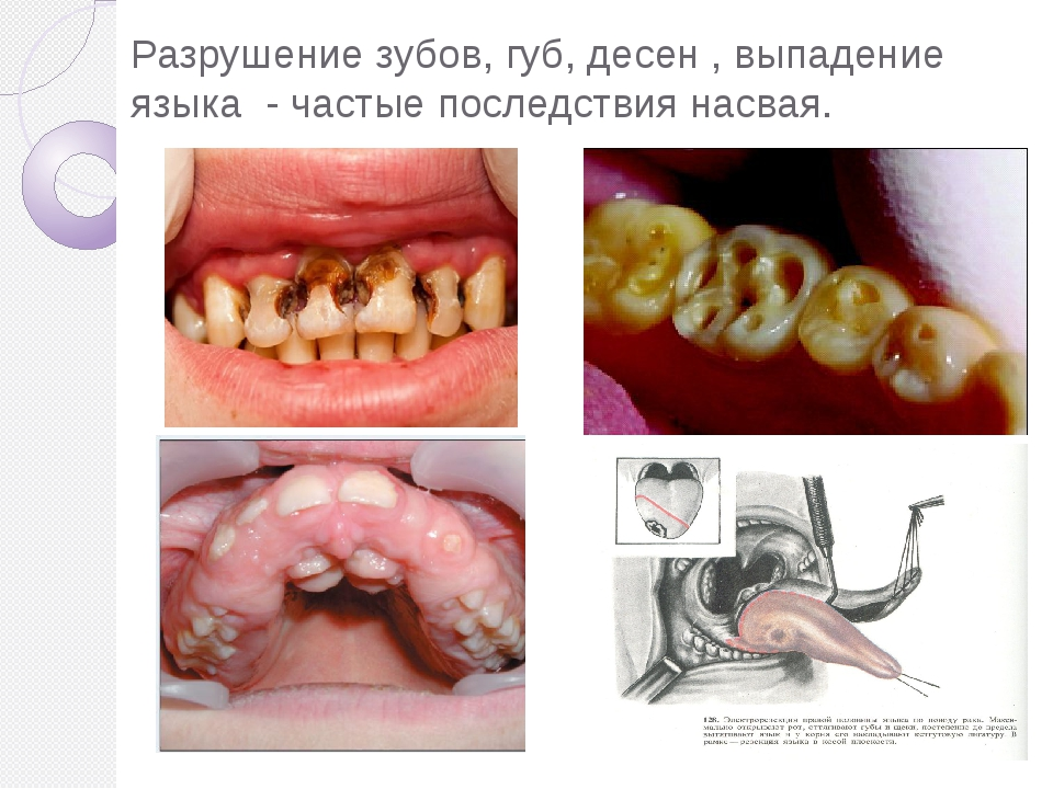 Разрушение зубов, губ, десен , выпадение языка - частые последствия насвая.