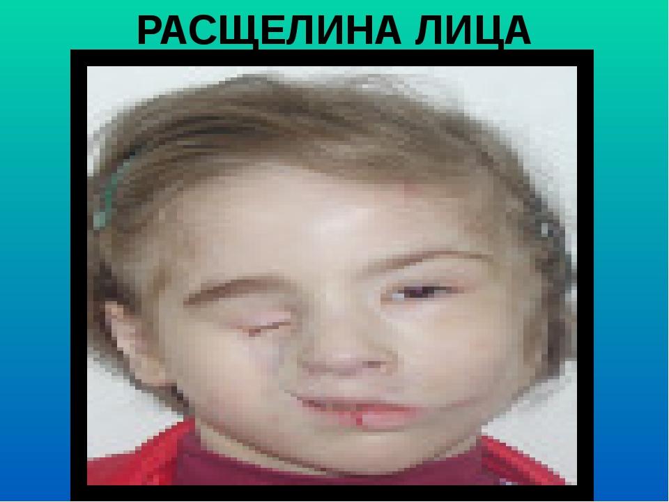 РАСЩЕЛИНА ЛИЦА