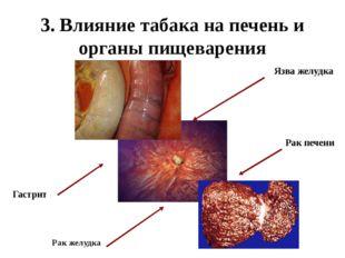 3. Влияние табака на печень и органы пищеварения Рак желудка Гастрит Рак пече
