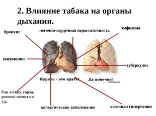 2. Влияние табака на органы дыхания. пневмония бронхит Рак легких, горла, ро