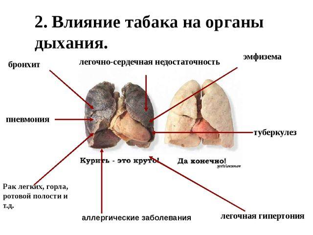 2. Влияние табака на органы дыхания. пневмония бронхит Рак легких, горла, ро...
