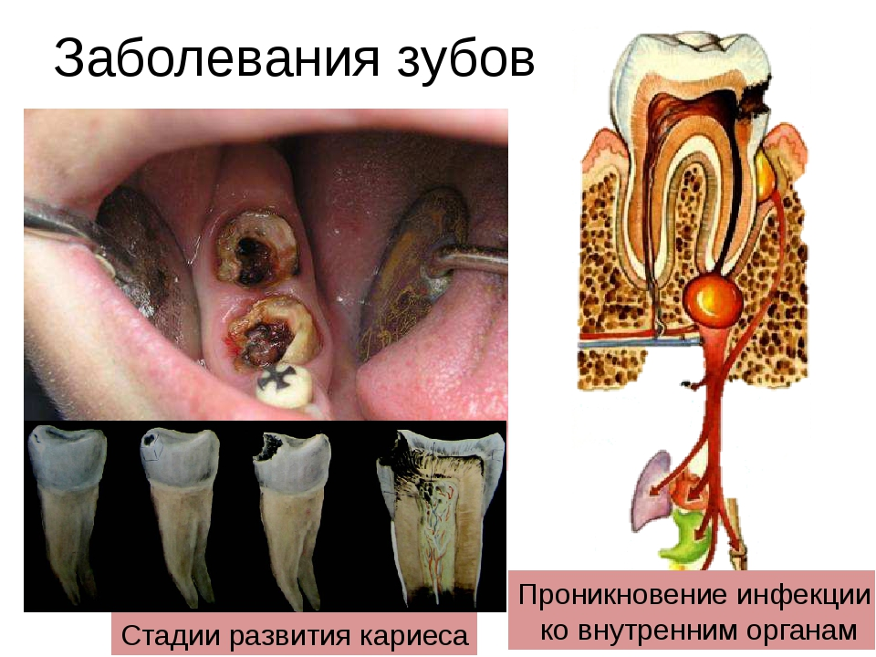 Заболевания зубов Стадии развития кариеса Проникновение инфекции ко внутренни...