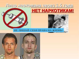 Лицо наркомана через 1,5 года НЕТ НАРКОТИКАМ! НЕ ЛИШАЙ СЕБЯ ПРАВА НА ЖИЗНЬ!