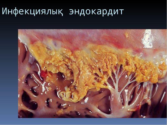 Инфекциялық эндокардит
