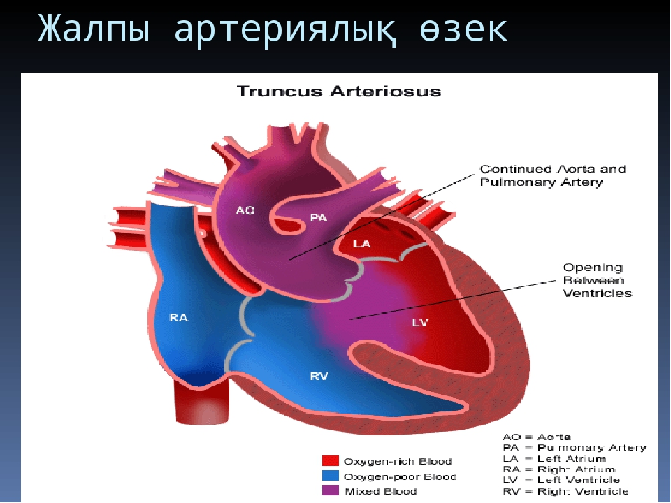 Жалпы артериялық өзек