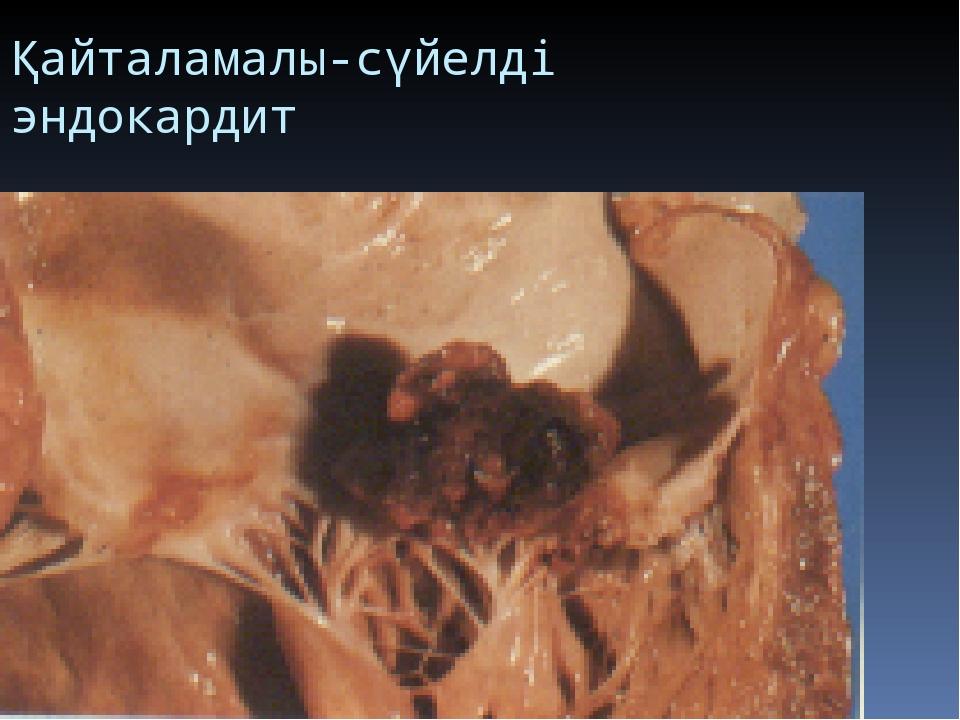 Қайталамалы-сүйелді эндокардит