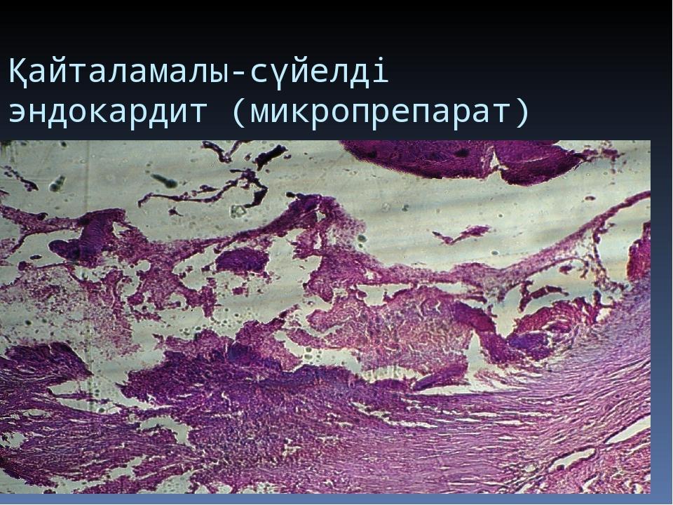 Қайталамалы-сүйелді эндокардит (микропрепарат)