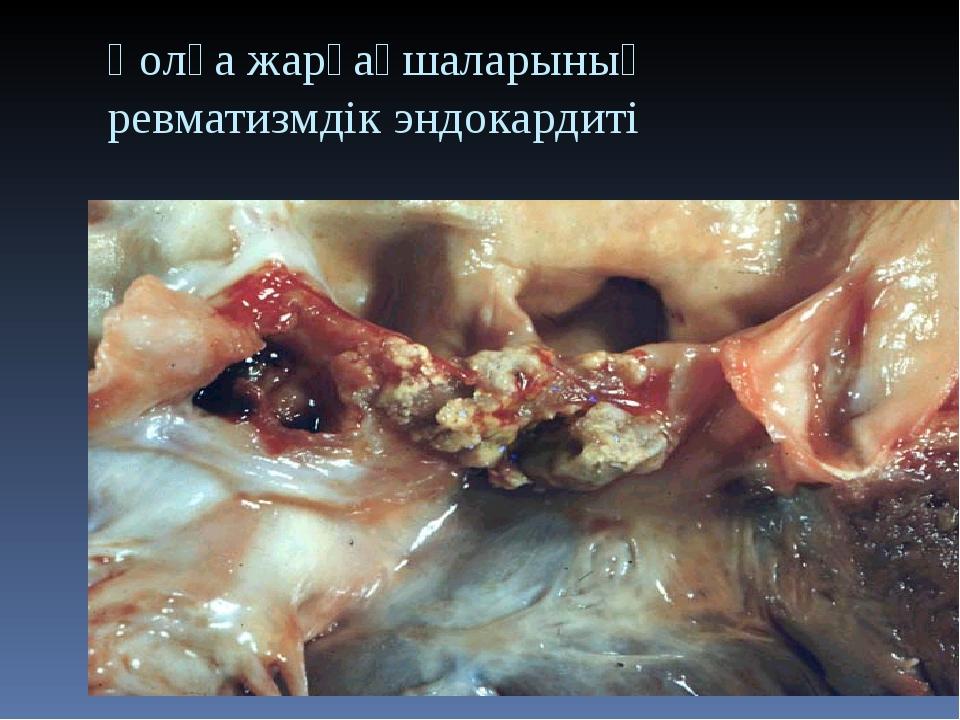 Қолқа жарғақшаларының ревматизмдік эндокардиті