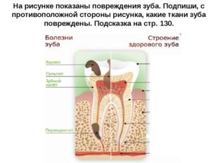 На рисунке показаны повреждения зуба. Подпиши, с противоположной стороны рису