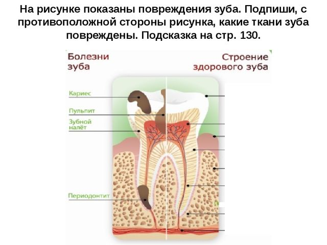 На рисунке показаны повреждения зуба. Подпиши, с противоположной стороны рису...