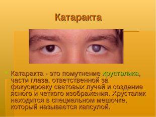 Катаракта Катаракта - это помутнение хрусталика, части глаза, ответственной з