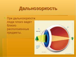 Дальнозоркость При дальнозоркости люди плохо видят близко расположенные предм