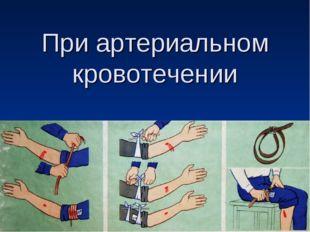 При артериальном кровотечении