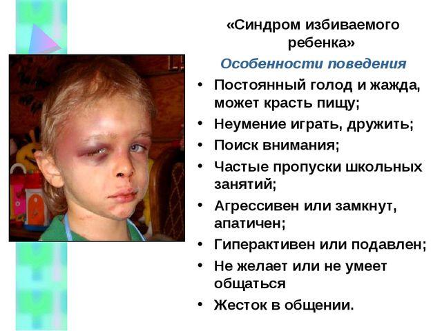 «Синдром избиваемого ребенка» Особенности поведения Постоянный голод и жажда,...