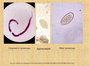 Спороциста трематоды Яйцо трематоды Фото взяты с сайта http://www.anthonygera