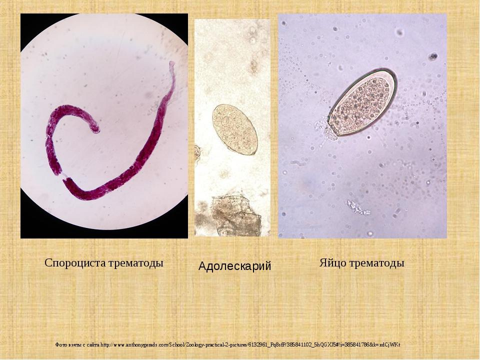 Спороциста трематоды Яйцо трематоды Фото взяты с сайта http://www.anthonygera...
