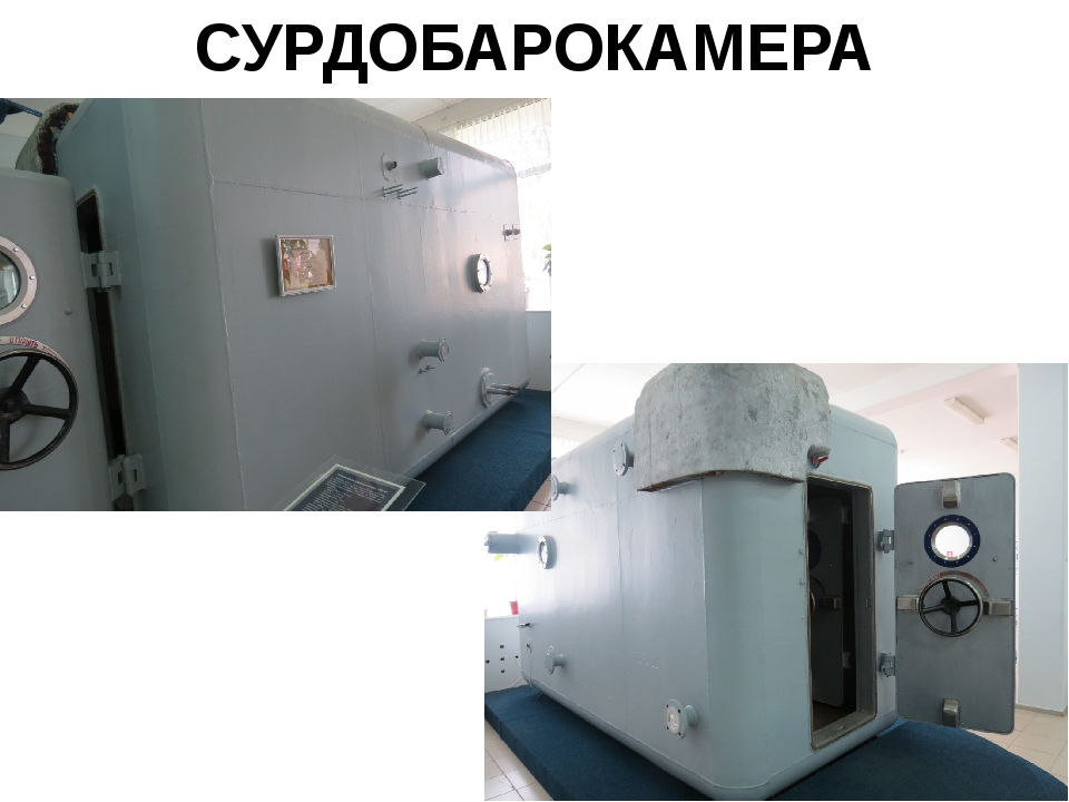 СУРДОБАРОКАМЕРА