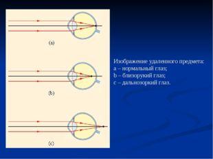 Изображение удаленного предмета: a–нормальный глаз; b–близорукий глаз; с