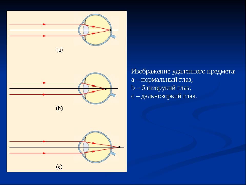 Изображение удаленного предмета: a–нормальный глаз; b–близорукий глаз; с...