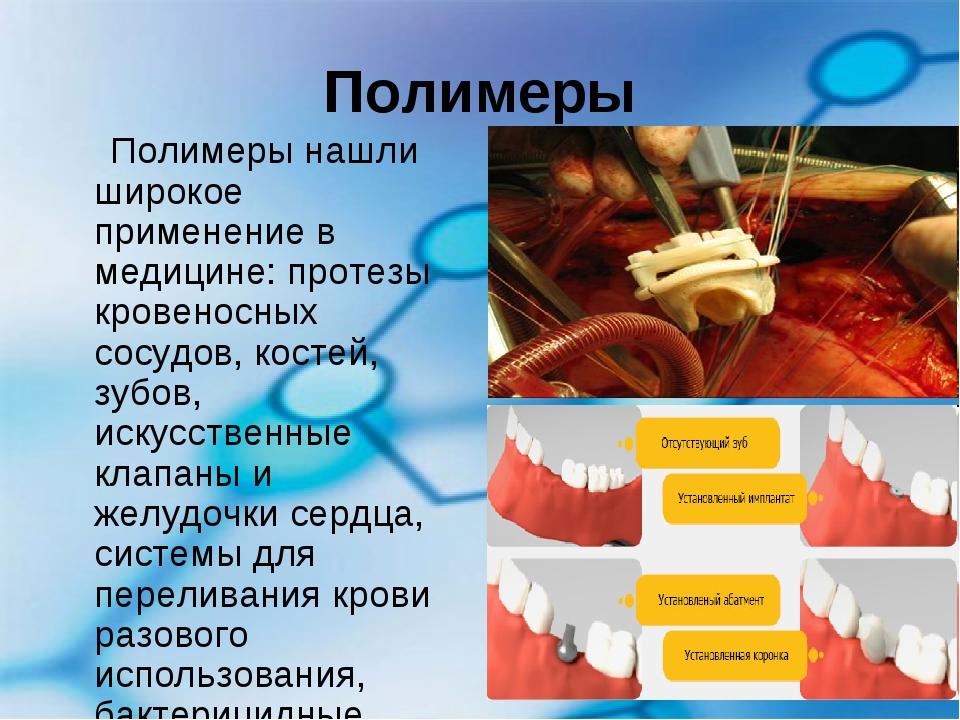 Полимеры Полимеры нашли широкое применение в медицине: протезы кровеносных со...