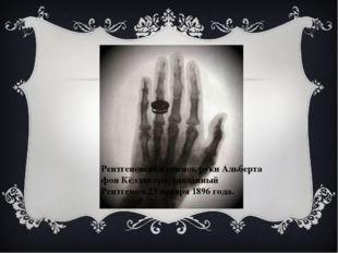 Рентгеновский снимок рукиАльберта фон Кёлликера, сделанный Рентгеном 23 янв