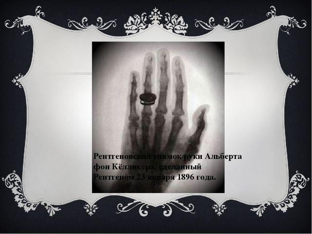 Рентгеновский снимок рукиАльберта фон Кёлликера, сделанный Рентгеном 23 янв...