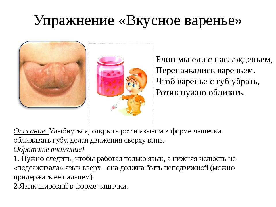 Упражнение «Вкусное варенье» Описание. Улыбнуться, открыть рот и языком в фор...
