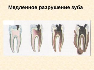 Медленное разрушение зуба