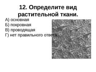 12. Определите вид растительной ткани. А) основная Б) покровная В) проводящая