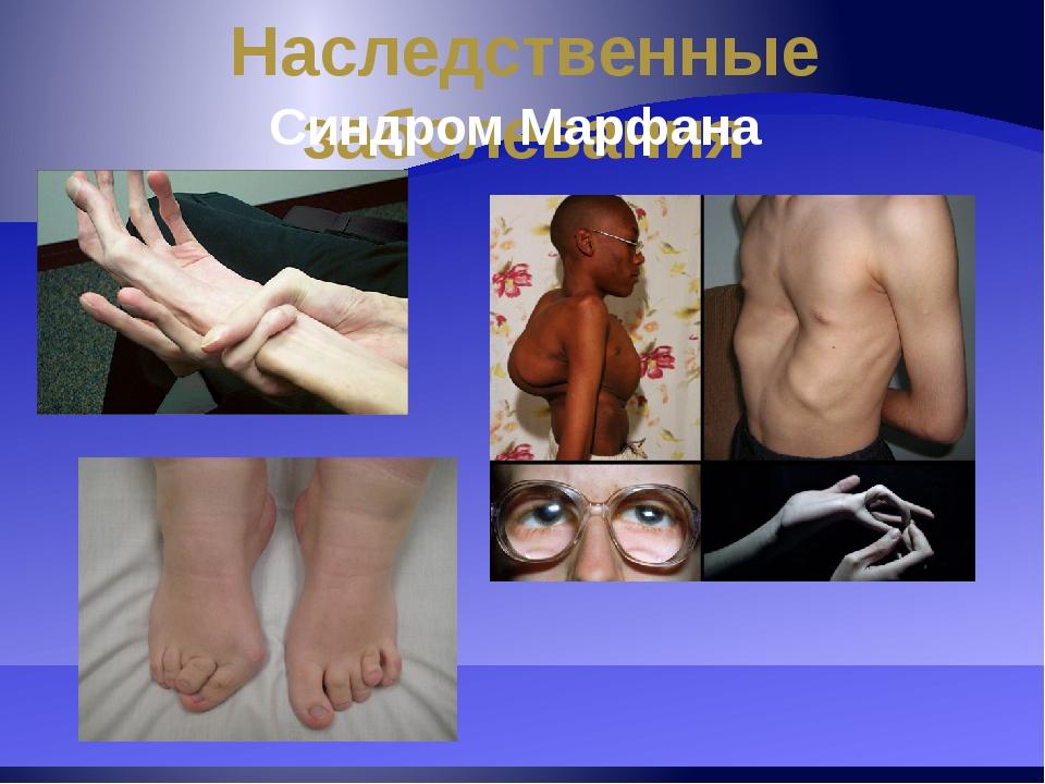 Наследственные заболевания Синдром Марфана