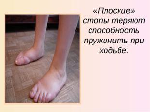 «Плоские» стопы теряют способность пружинить при ходьбе.