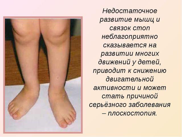Недостаточное развитие мышц и связок стоп неблагоприятно сказывается на разви...