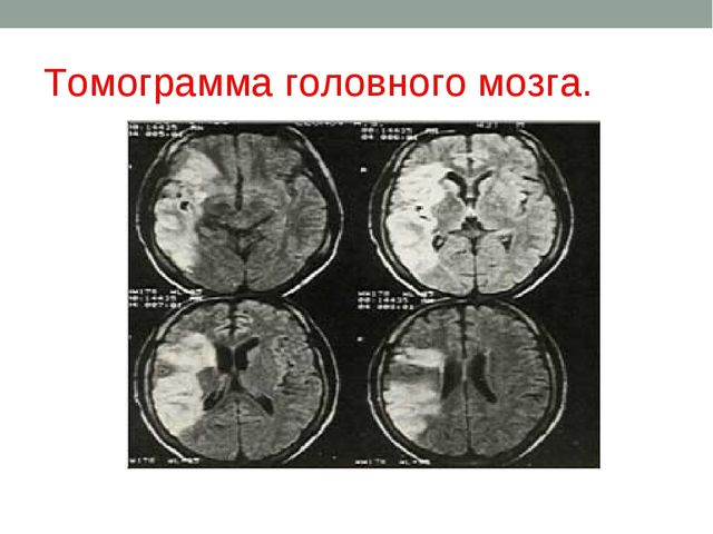 Томограмма головного мозга.