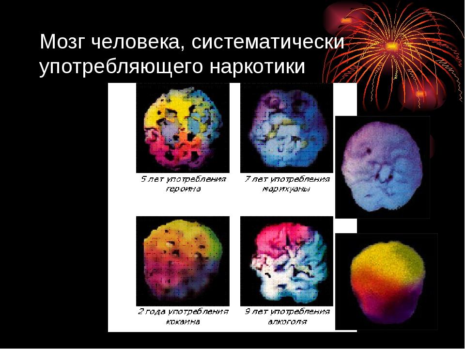 Мозг человека, систематически употребляющего наркотики