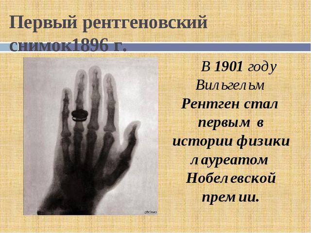 Первый рентгеновский снимок1896 г. В 1901 году Вильгельм Рентген стал первым...