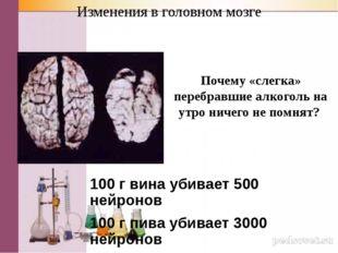 Изменения в головном мозге 100 г вина убивает 500 нейронов 100 г пива убивает
