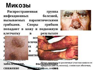 Распространенная группа инфекционных болезней, вызываемых паразитическими гри