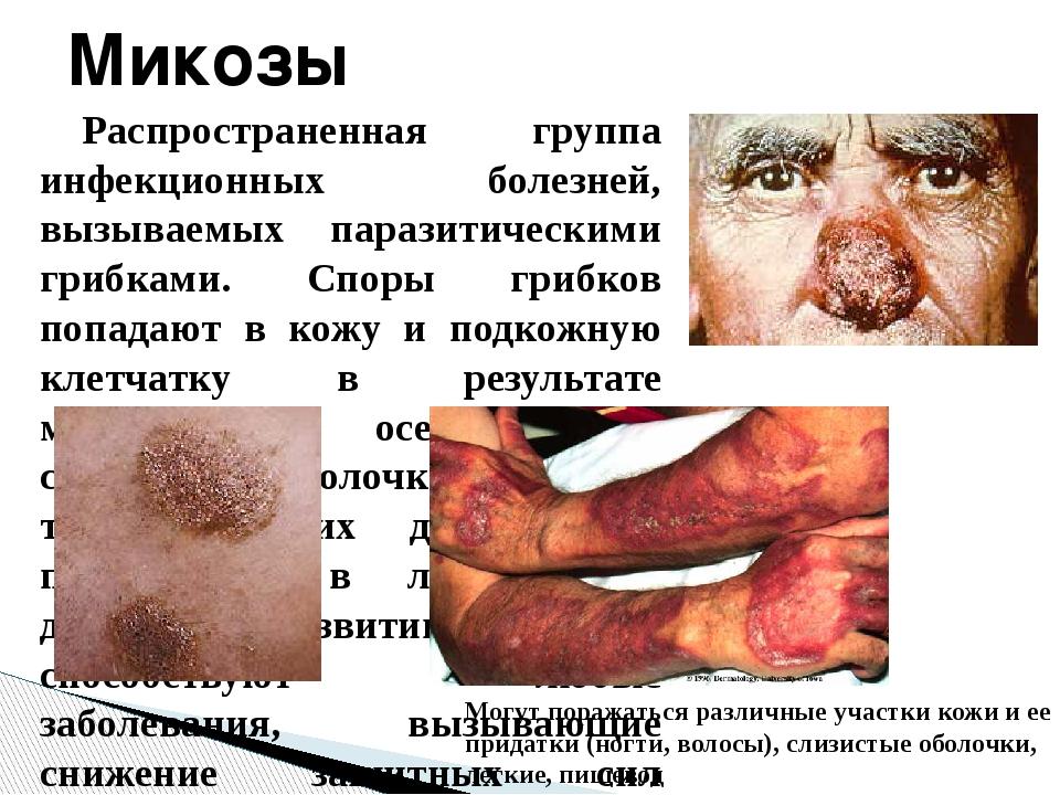 Распространенная группа инфекционных болезней, вызываемых паразитическими гри...