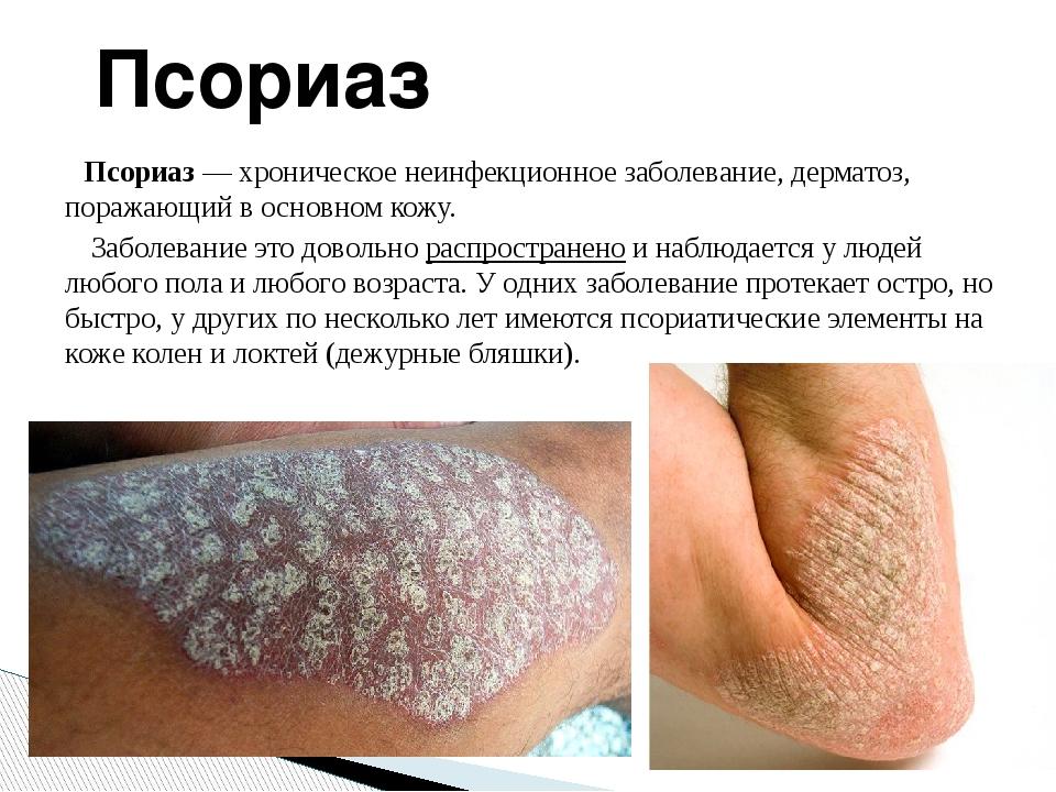 Псориаз— хроническоенеинфекционноезаболевание,дерматоз, поражающий в осно...