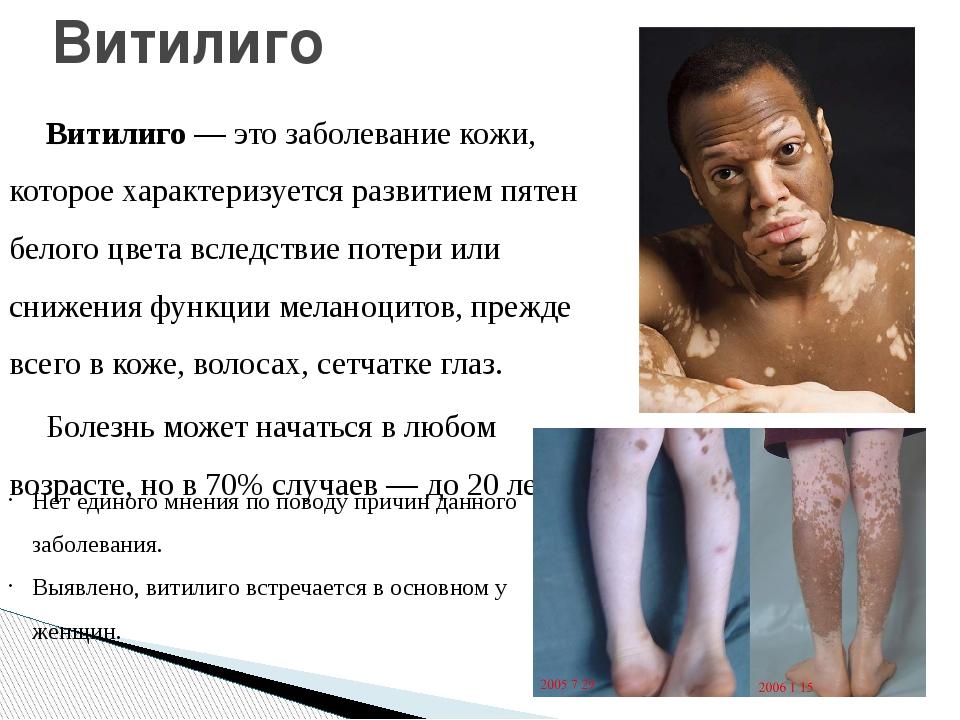 Витилиго— это заболевание кожи, которое характеризуется развитием пятен бело...