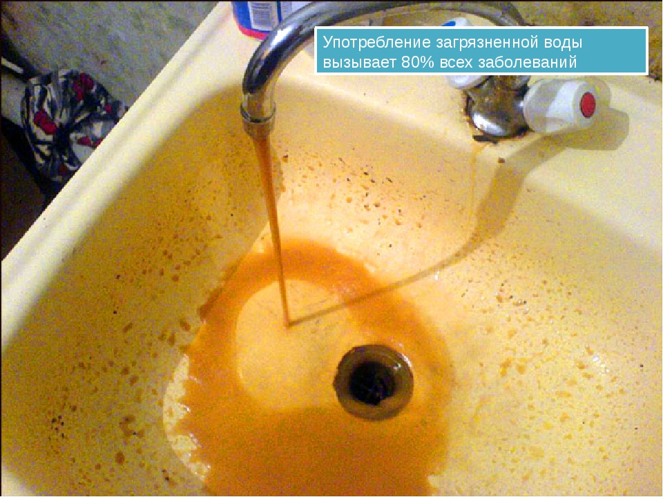 Употребление загрязненной воды вызывает 80% всех заболеваний