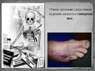 Очень грозным следствием курения является гангрена ног.