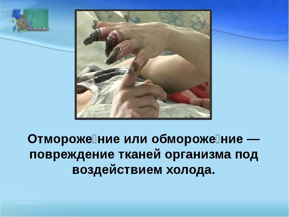 Отмороже́ние или обмороже́ние — повреждение тканей организма под воздействием...