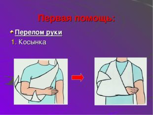 Первая помощь: Перелом руки 1. Косынка