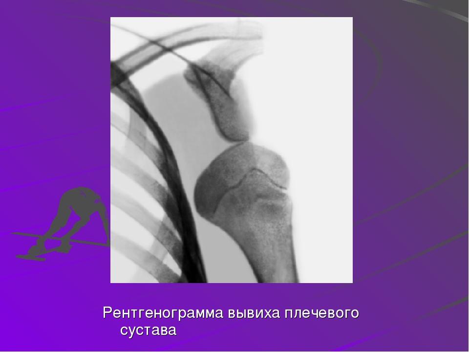 Рентгенограмма вывиха плечевого сустава