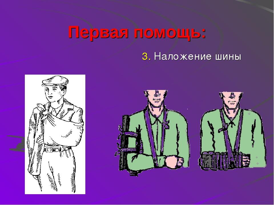 Первая помощь: 2. Пола пиджака 3. Наложение шины