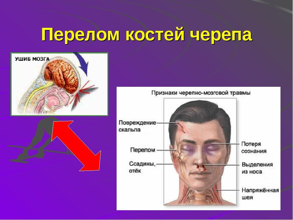 Перелом черепно мозговой кости