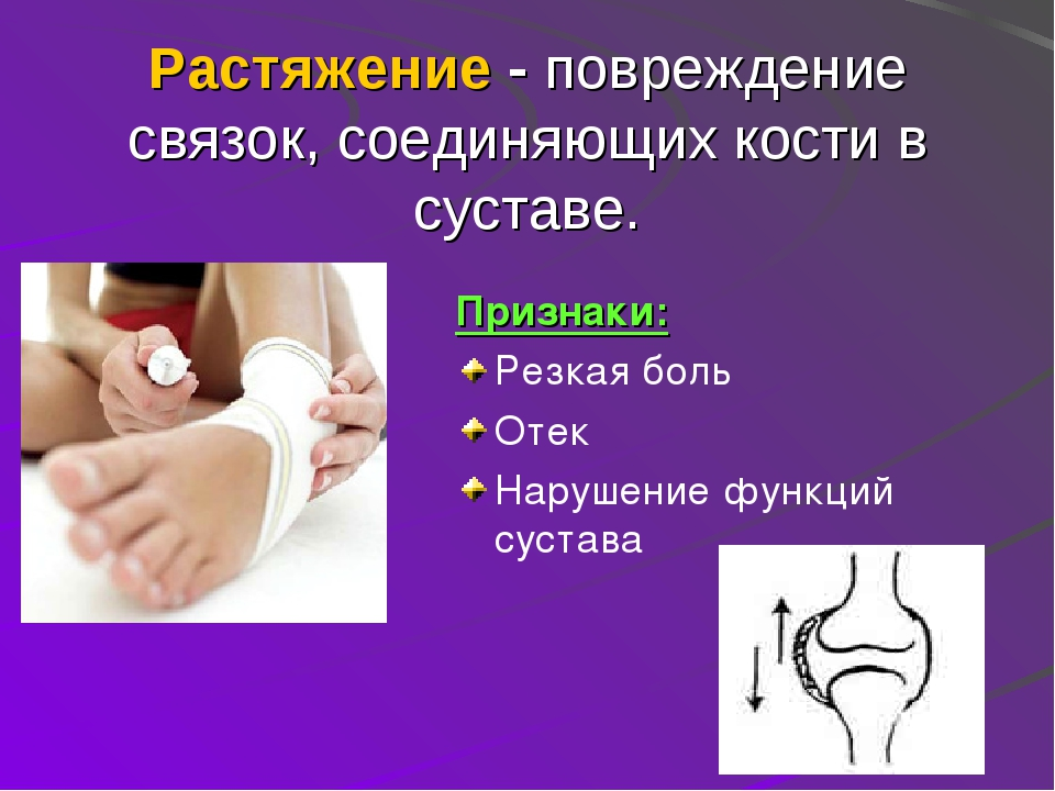 Растяжение - повреждение связок, соединяющих кости в суставе. Признаки: Резк...