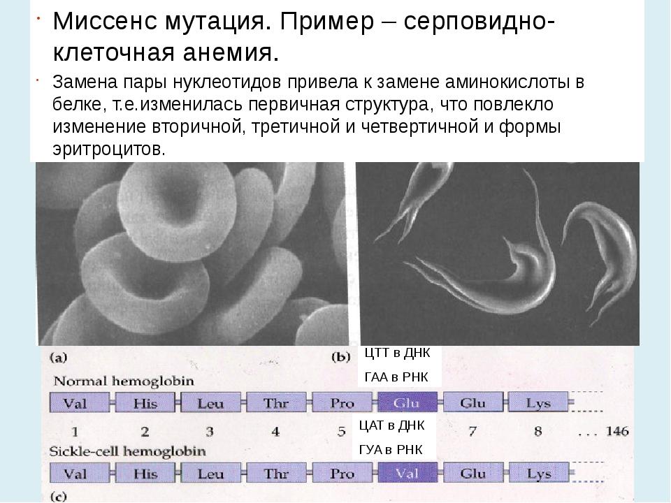 ЦТТ в ДНК ГАА в РНК ЦАТ в ДНК ГУА в РНК Миссенс мутация. Пример – серповидно-...